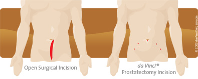 prostatectomy_comparison395x159